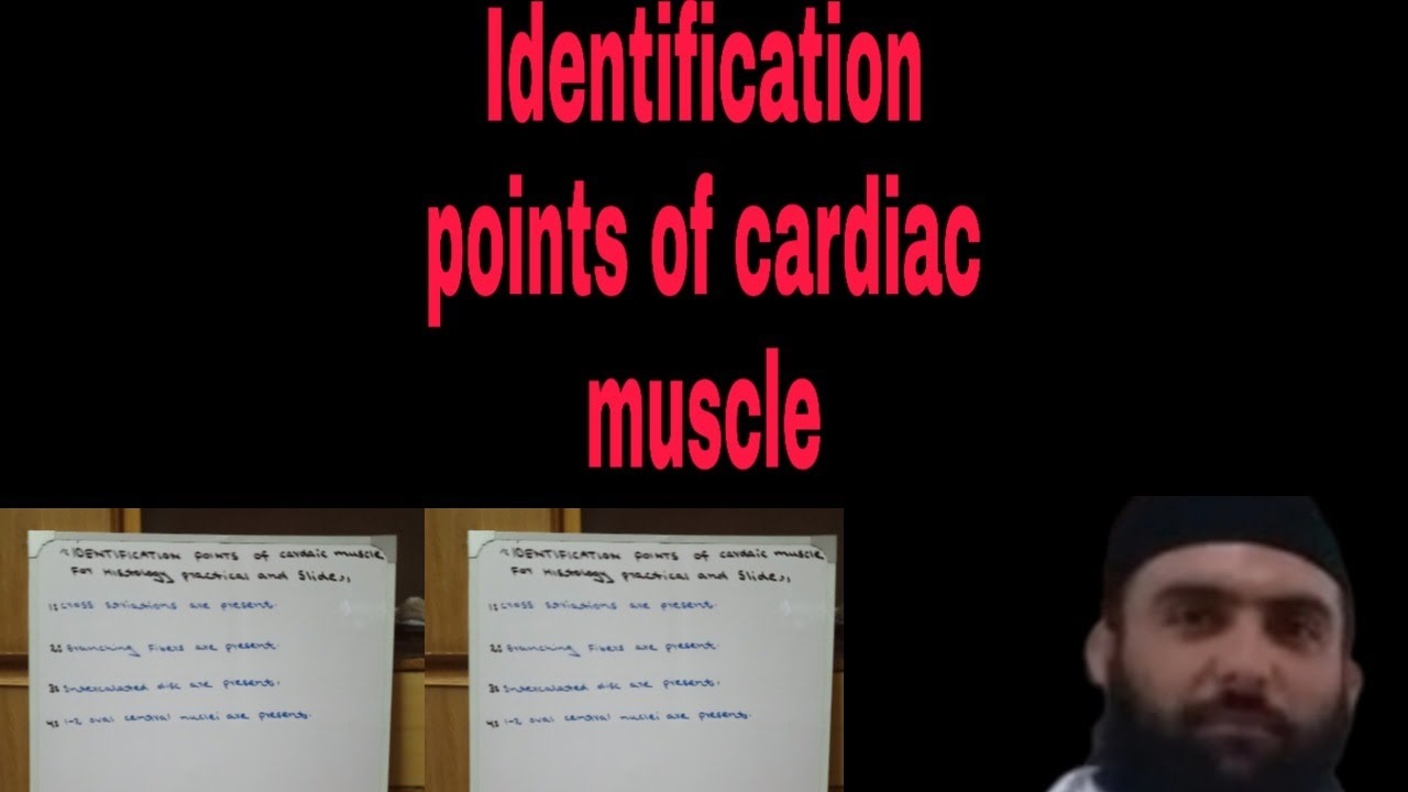 Identification points of Cardiac muscle for Histology ...