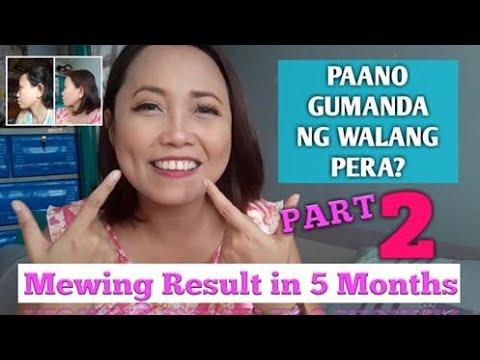 Mewing Result in 5 Months: (Paano Gumanda ng Walang Pera Part 2? Update!)