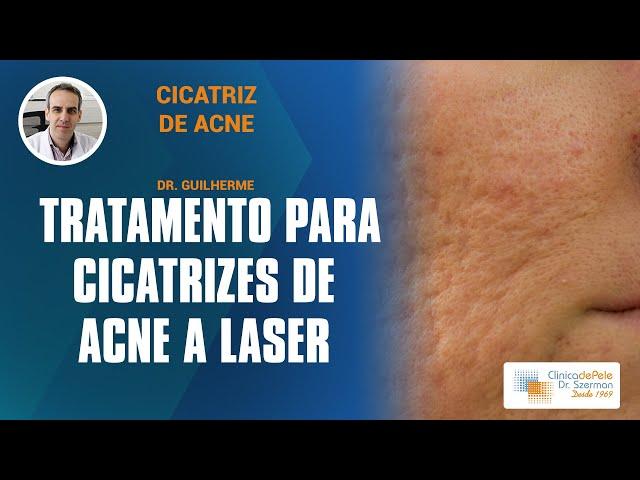 Tratamento para cicatrizes de acne |  Laser de CO2 Fracionado DEKA