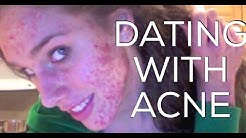 hqdefault - Online Dating For People With Acne