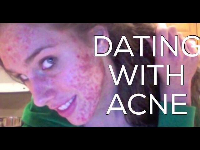 dating-with-acne-my-story-relationships-opinions-cassandra-bankson