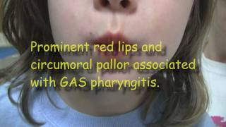 Strep Throat and Scarlet Fever
