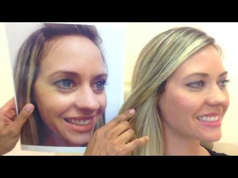 Botox & Restylane- Before & After