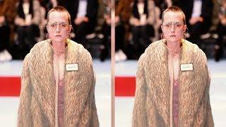 Студентка стала моделью Gucci после удаления опухоли мозга | StarHit.ru