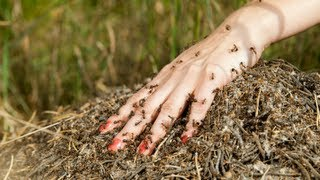 How to Cure Insect Bites - Insect Bites Treatment