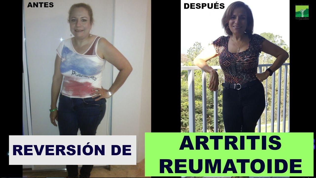 Reversión de Artritis Reumatoide