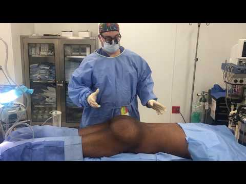 Another Impressive Male Brazilian buttlift by Dr. Hughes in Los Angeles