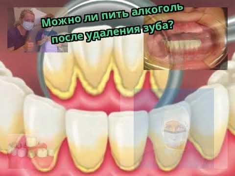 Можно ли пить алкоголь после удаления зуба?