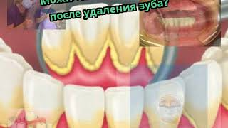 Можно ли пить алкоголь после удаления зуба?(, 2017-12-10T10:10:24.000Z)