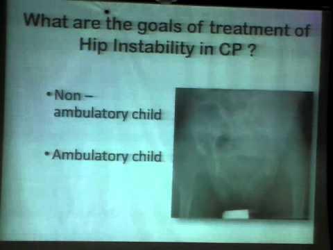 Hip problems in Cerebral Palsy, Prof. Hisham Abdel-Ghani