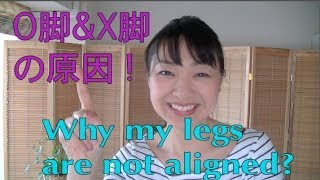 Legs 2 ! O脚X脚 の 原因って? Why my legs are not align? :O脚矯正方法