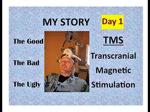 tms-don't-do-it-until-you've-seen-my-story!-the-truth-transcranial-magnetic-stimulation-day-1