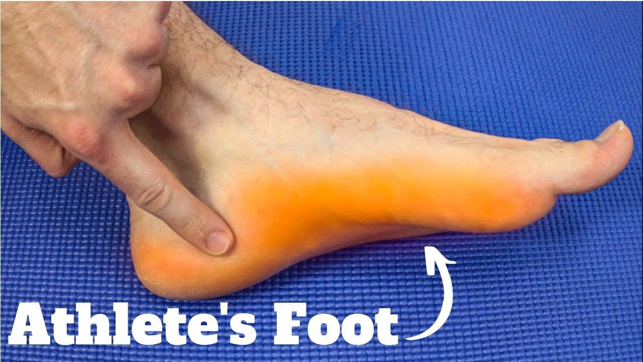 Severe Athlete S Foot On Foot Heel Causes Best Treatment 2019