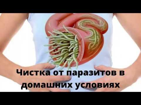 Лечение от паразитов в домашних условиях народными средствами