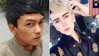 Pemuda operasi plastik wajah terinspirasi dari game Final Fantasy - TomoNews