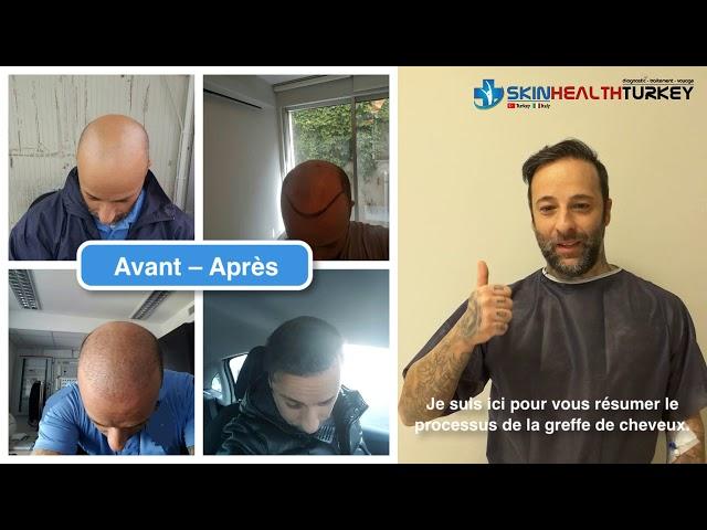 Greffe de cheveux Turquie - Avant-Apres - Dr. Oyku Celen / Skin Health Turkey