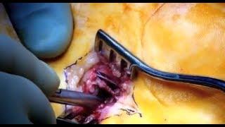 Nailed Foot - Part 2 - Bizarre ER