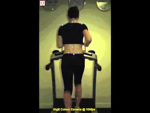Gait analysis from the posterior view @ 100fps... the GigE Colour Quinic High-Speed Camera