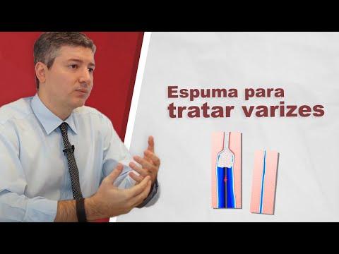 Varizes com Espuma Densa (Tratamento de varizes, tecnica vascular)