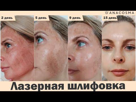 ❗️Лазерная шлифовка лица: до и после❗️❗️❗️ Реальный результат❗️❗️❗️