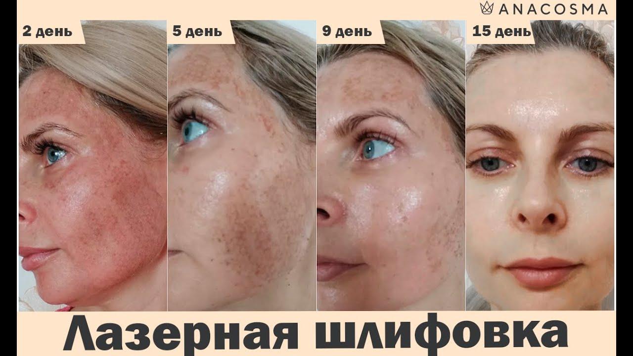 Лазерная шлифовка лица: до и после
