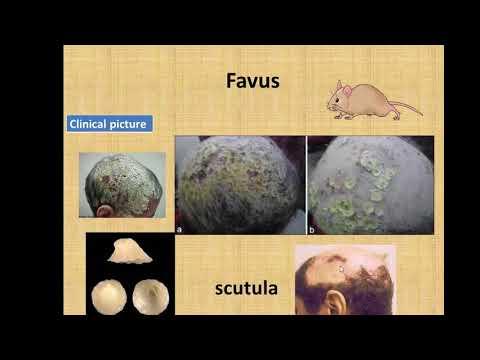 شرح أمراض العدوى الجلدية  Dermatological Infections  الجزء 2 د. محمود سويلم