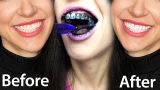 Fastest Way To Whiten Teeth At Home (What REALLY Works)