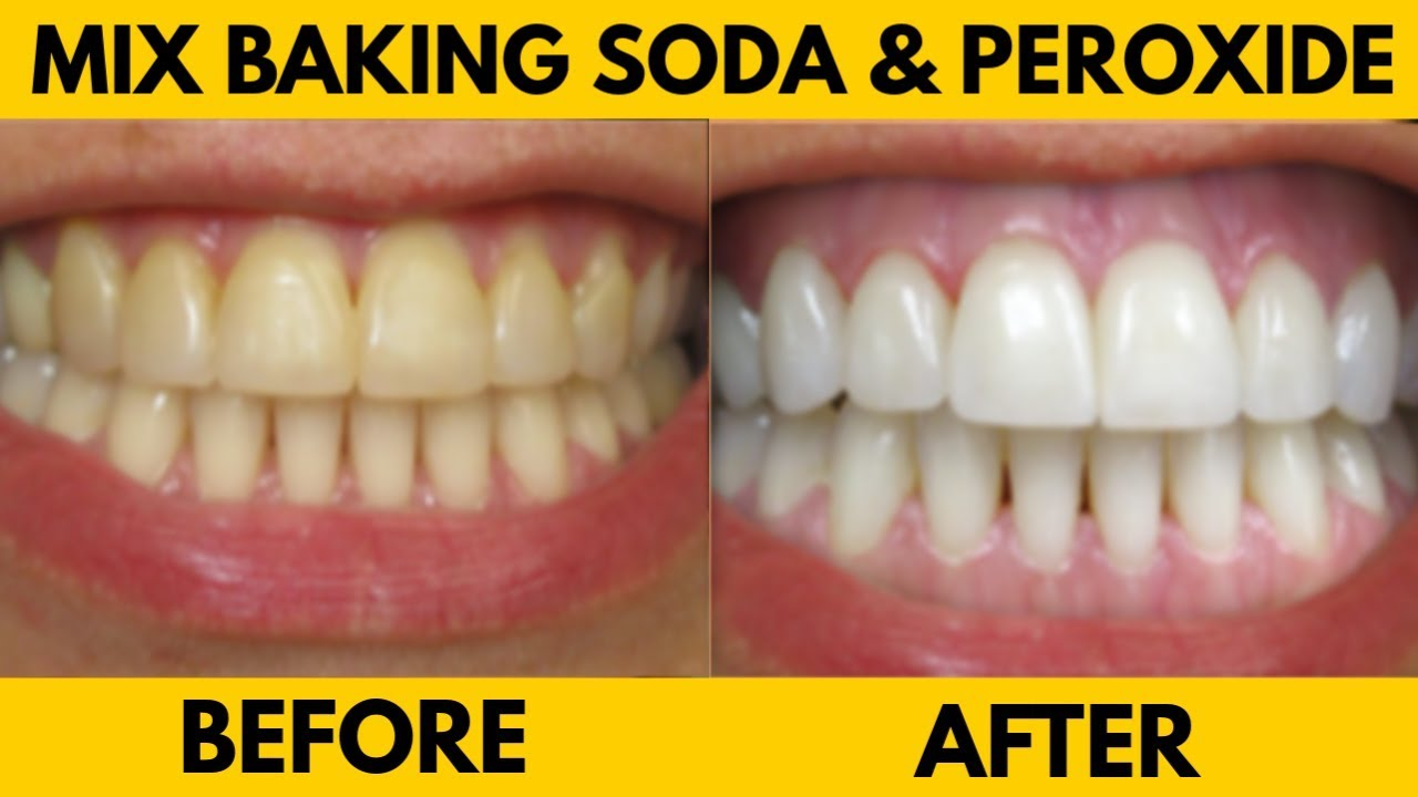 Mix Baking Soda And Hydrogen Peroxide To Make This Powerful Teeth Whitening Toothpaste Youtube