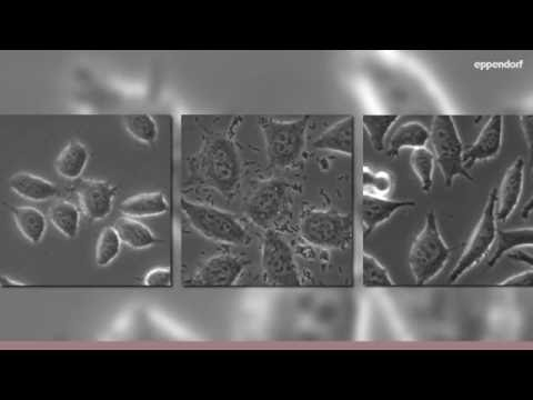 Moving Bacteria in Cell Culture - YouTube