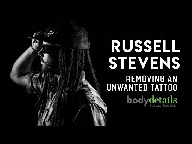 Removing My Unwanted Tattoo | Russell Stevens | Body Details