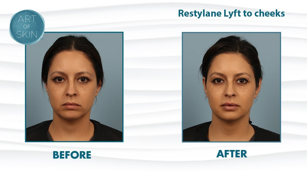 Restylane Lyft (Perlane) filler for cheek lifting and facial balancing