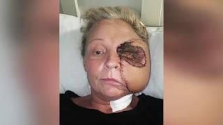 FLESH EATING Bug Causes Mother to Lose Half Her Face - Medical Surgery