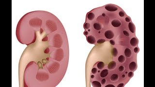 Polycystic Kidney Disease -  (PEV) Patient Education Video