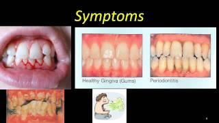 ANUG - severe gingivitis