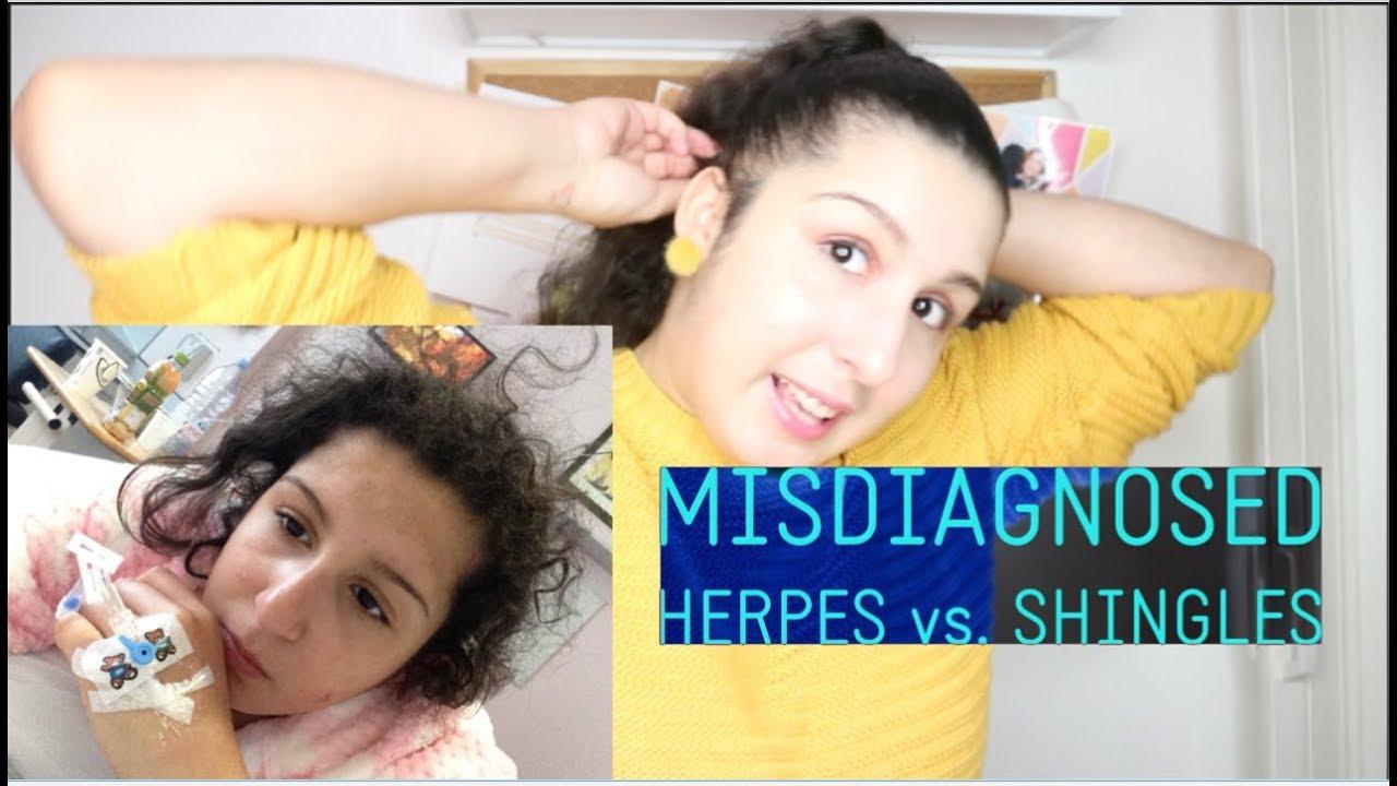 I Was Misdiagnosed   HERPES vs SHINGLES