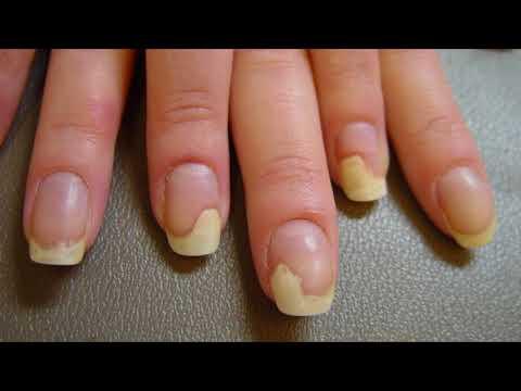 Почему ногти желтеют на руках после лака