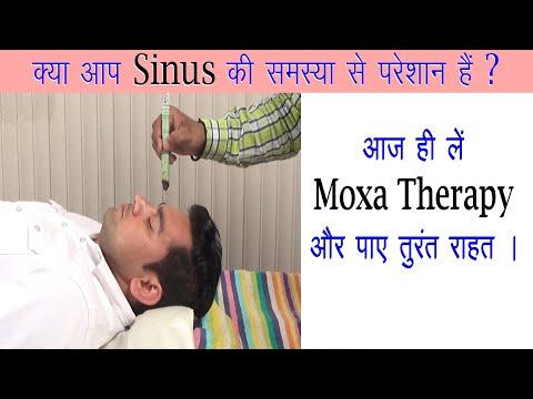क्या आपको Sinus की समस्या है ? तो आज ही ले Moxa Therapy और पाए Sinus से तुरतं राहत | Seva Dham Plus