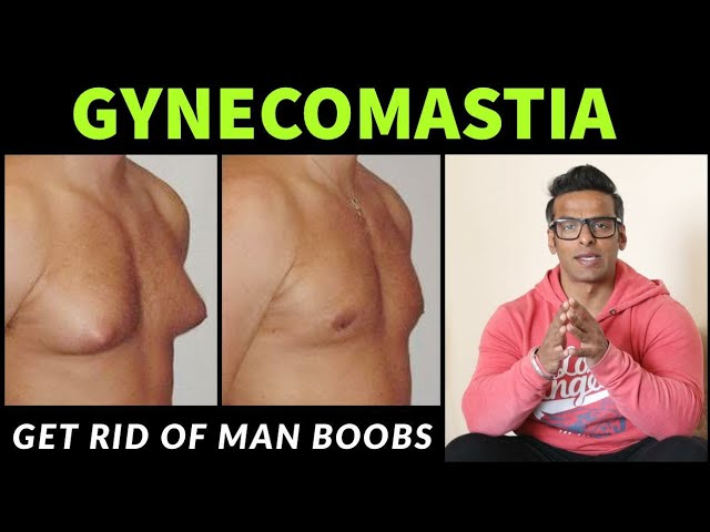 Gynecomastia | How to get rid of Man Boobs | Yatinder Singh