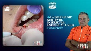 la Diapneusie lèvre Inférieure - Exèrése au Laser I Dr Pourrat
