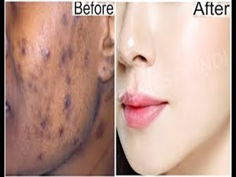 Photoshop Tutorial.How to Remove dark spot/ Acne in Photoshop. adobe photoshop cc remove face spot.