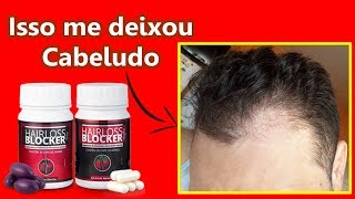 G1- Hairloss Blocker Funciona Mesmo? Meu Depoimento Sincero sobre o HL BLOCKER