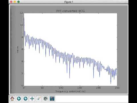 FFT converted ECG data noise