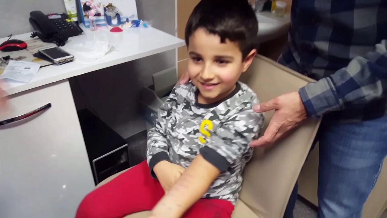 Çocuklarda alerji testi nasıl yapılır?Tuna test etti