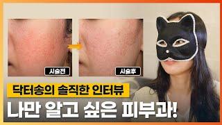 여드름흉터치료 인터뷰/홍조치료 인터뷰/안면홍조치료 인터…