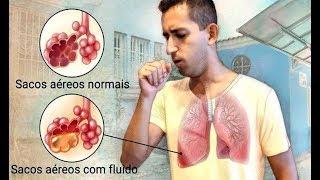 ✅ Conheça 8 Sintomas da Pneumonia que Você não Pode Ignorar!