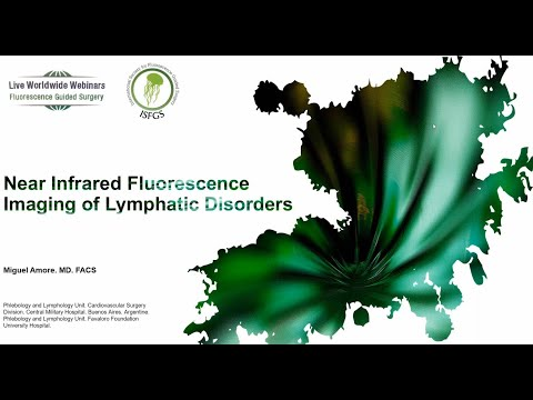 Near Infrared Fluorescence Imaging Of Lymphatic Disordes - Miguel A. Amore