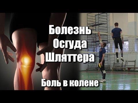 Начали болеть колени после тренажерного зала