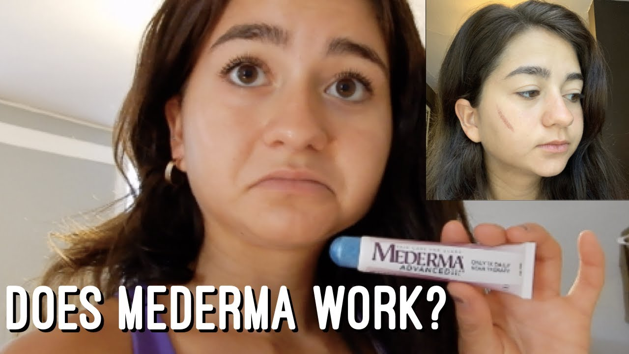 My Experience With Mederma How To Remove Scars Mederma Review