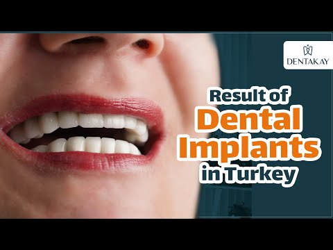 Marina from Romania did dental implants in Turkey and got an AMAZING RESULT!