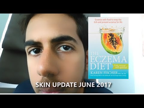 Karen Fischer - Eczema Diet | My Thoughts
